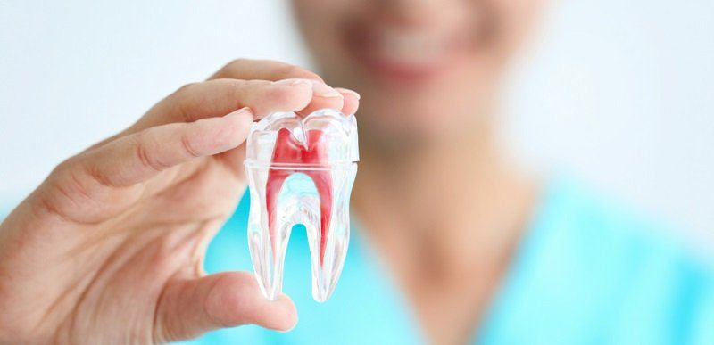 How Long Does a Root Canal Procedure Take